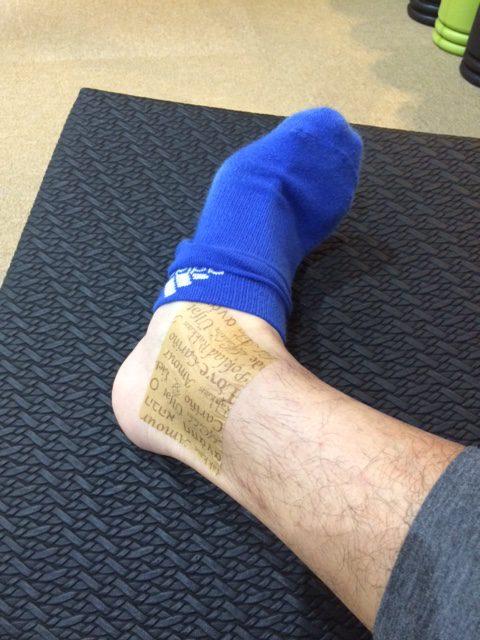 足痛めてましたー